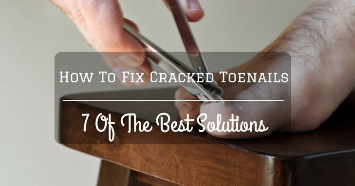 How to Fix Cracked Toenails: 7 of the Best Solutions