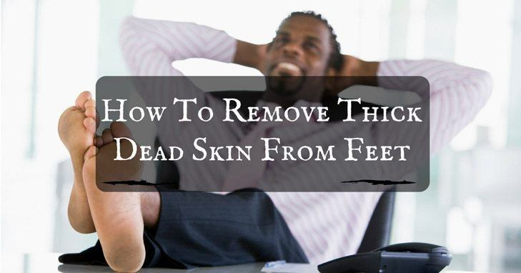 how-to-remove-thick-dead-skin-from-feet-729x382